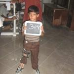 artificial-limbs-08