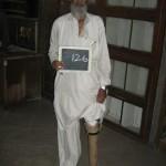 artificial-limbs-09