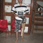 artificial-limbs-10