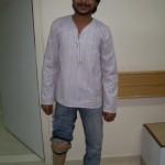 artificial-limbs-11
